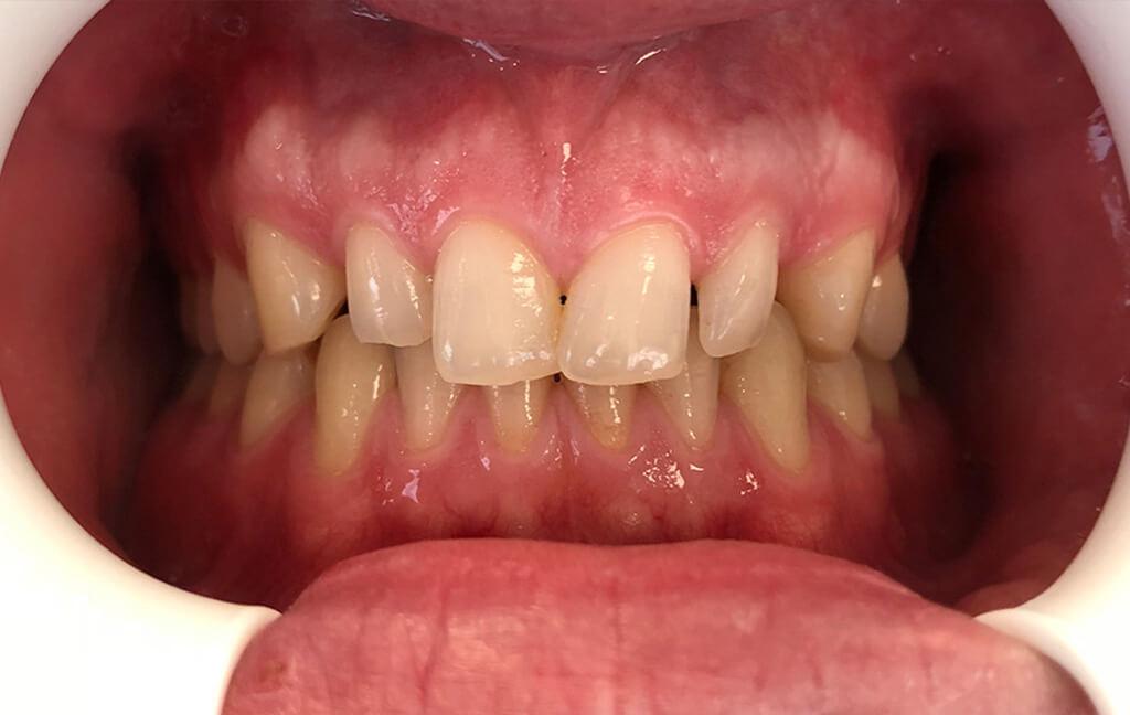 Zubno meso i zubi prije terapije i ugradnje Ljuskica za zube