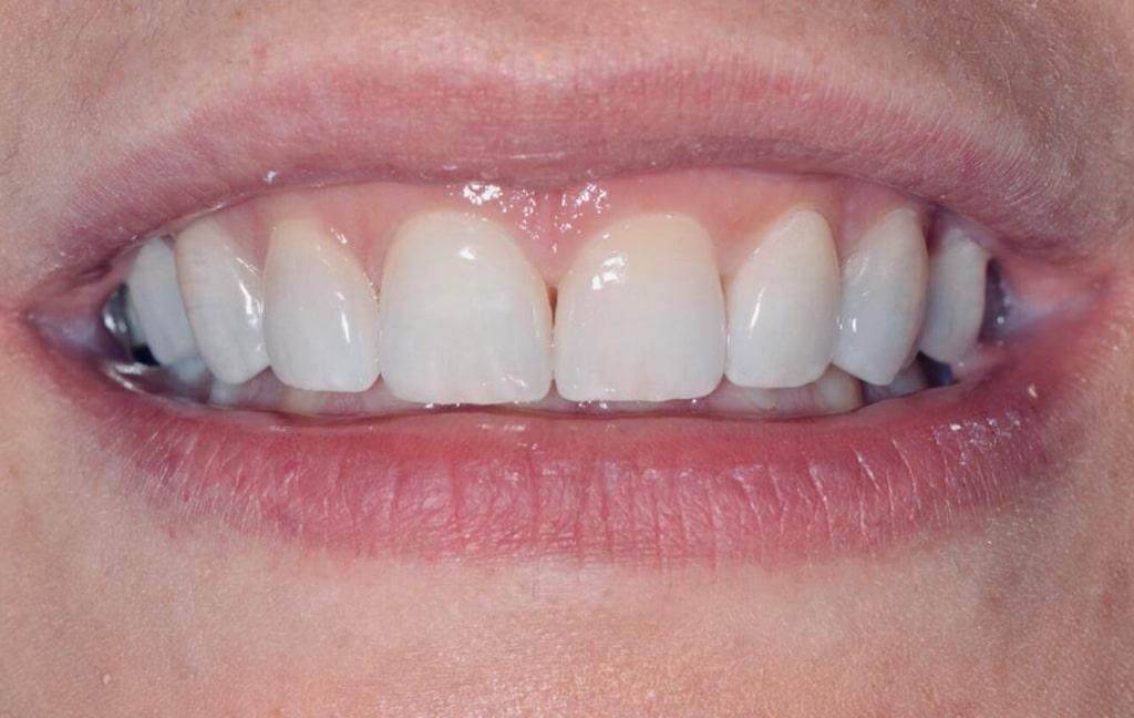 Frontalna slika ljuskica za zube