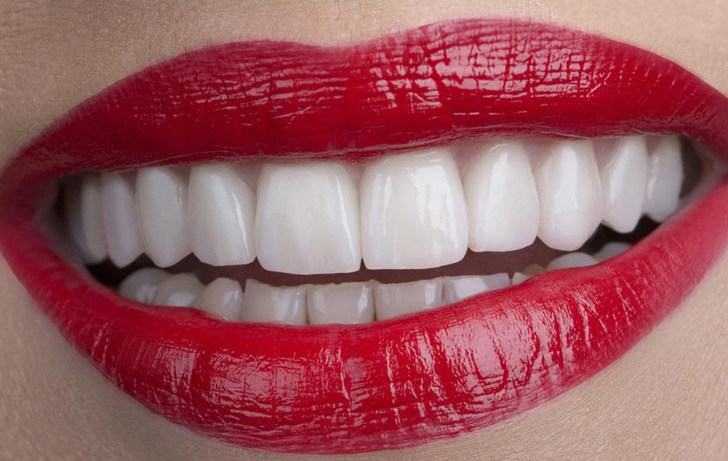 Zadovoljna pacijentica Ljubica nakon ugradnje zubnih ljuskica