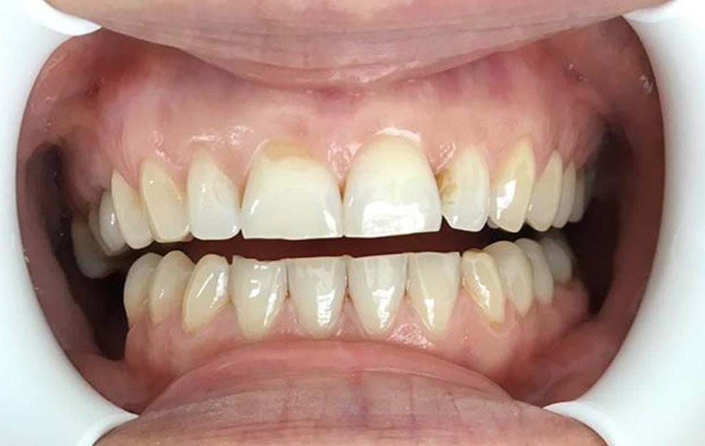 Zubi prije stomatološke terapije