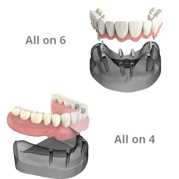 Metoda implantata