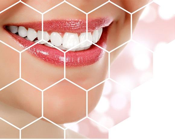 bijeli zubi nakon izbjeljivanja zubi