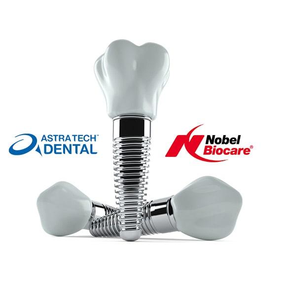 Nobel biocare i Astra AV zubni implantat