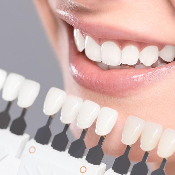 Procedura izbjeljivanja zubi