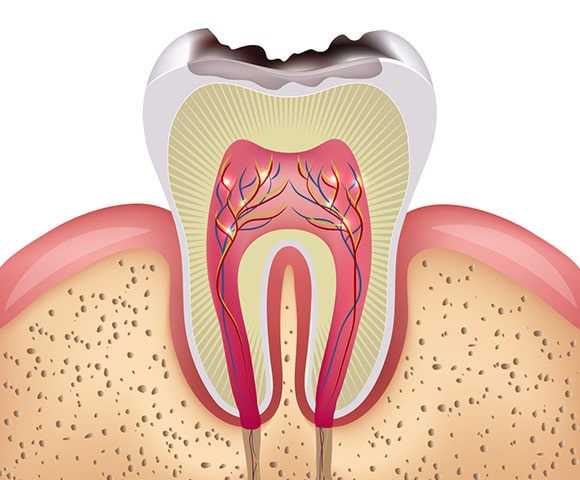 zubni karijes
