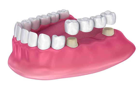 Most na zubima
