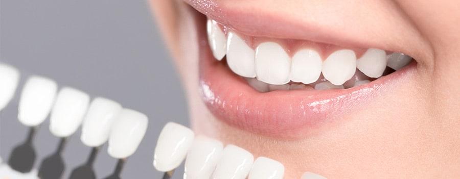 članak o izbjeljivanju zubi
