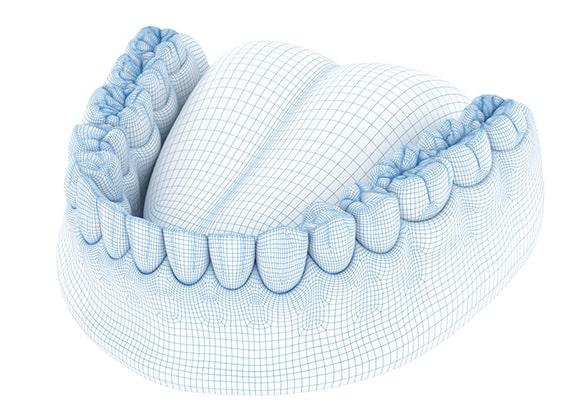digitalna slika zubi