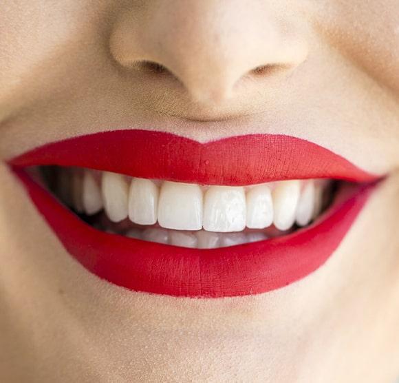 Crvene usne i zubi