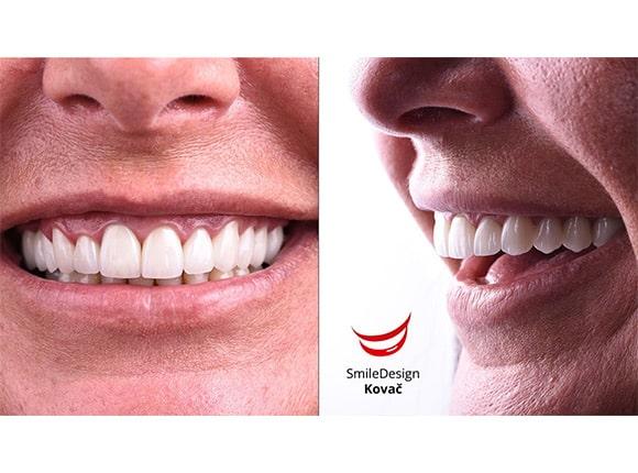 Higijena zubnih krunica