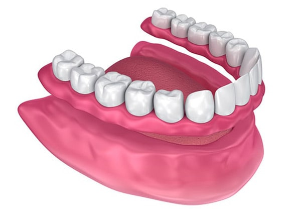 Mobilna proteza za zube