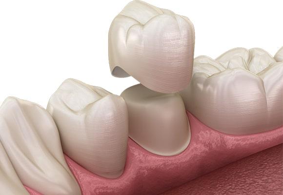 Cijena zubnih krunica