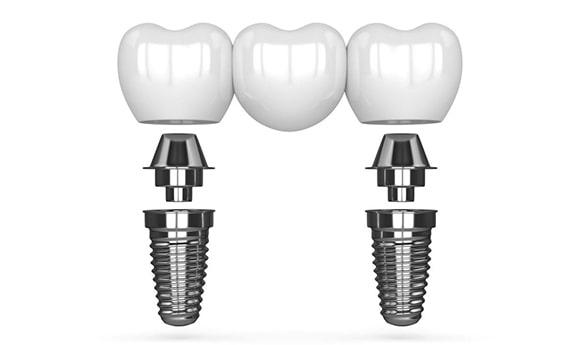 Zubni most na dva implantata