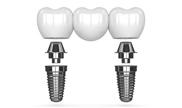 Krunice zubnog mosta na implantatima