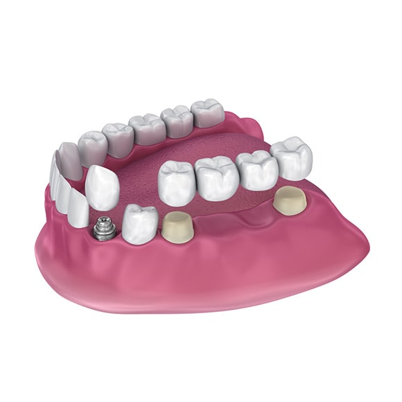 zubni most na implantatima