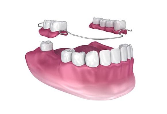 Tipovi proteza za zube