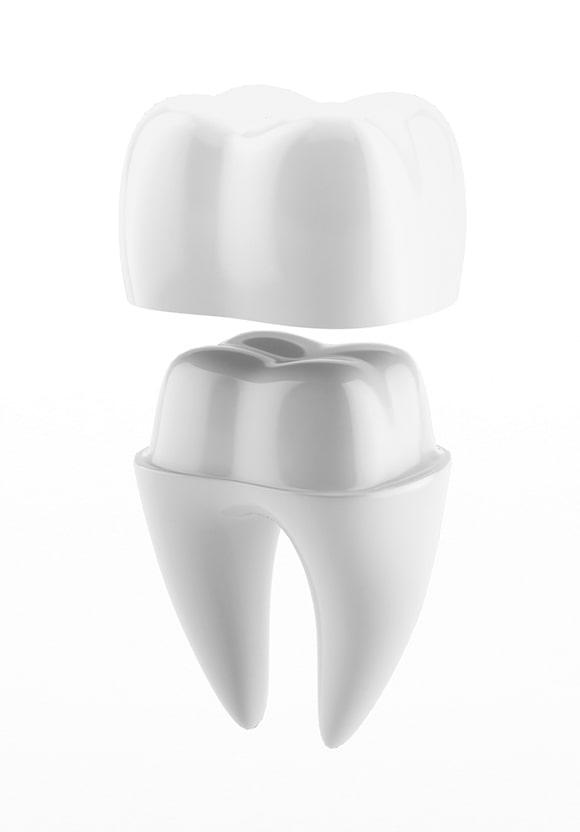 Vrste zubnih navlaka