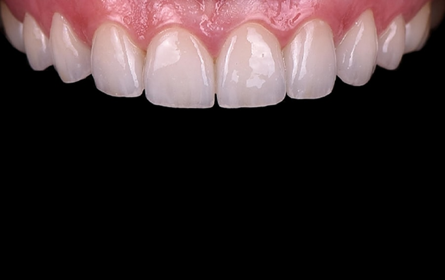 Nakon terapije ortodoncije i ljuskica