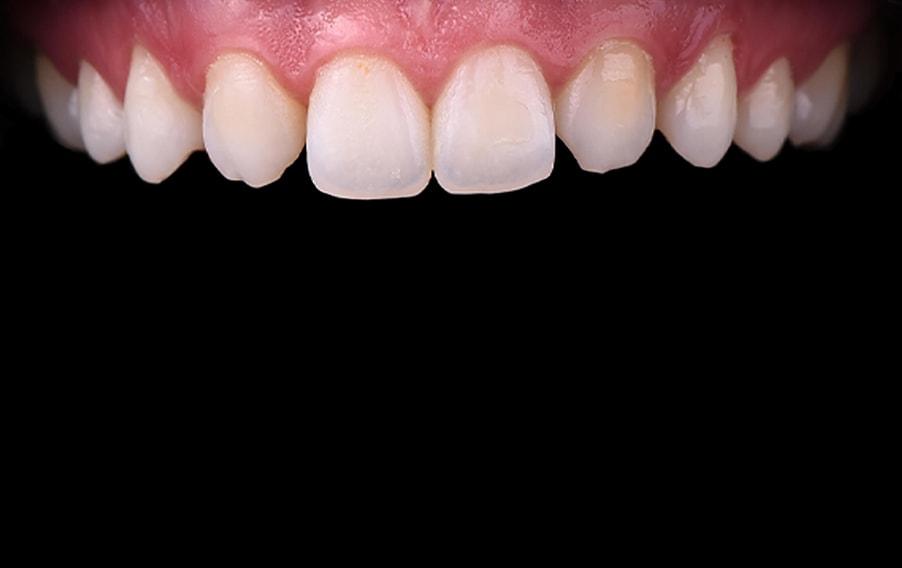 Prije ortodoncije i ljuskica