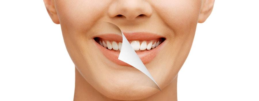 Poliranje zubi