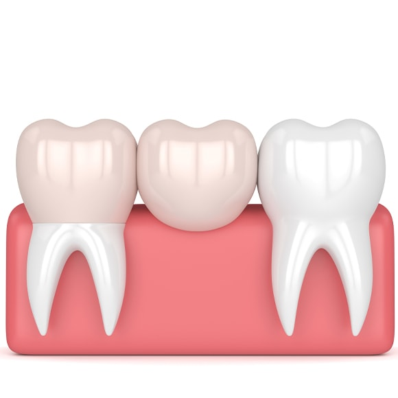 Vrijek trajanja zubnog mosta