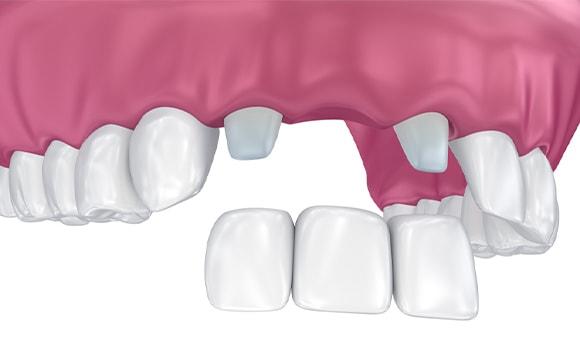 Prilagodba na most zuba