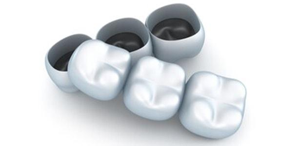 Privremeni most zuba