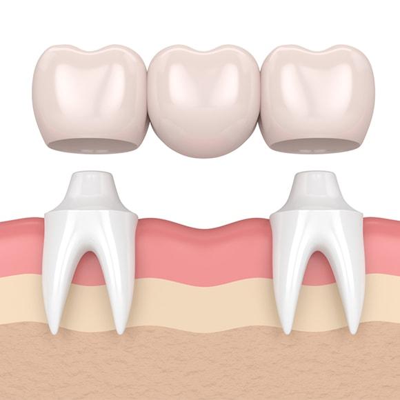 Vrsta mostova za zube