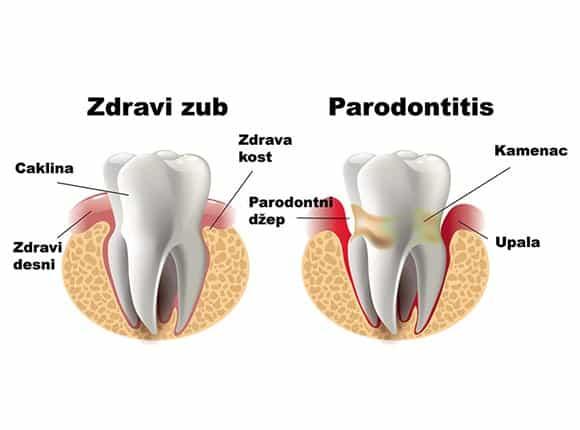 Bolest parodonta